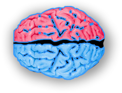 Brain Picture - Epilepsy or Brain Injury